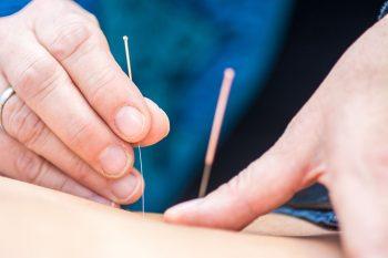 Akupunktur Gemeinschaftspraxis Waake